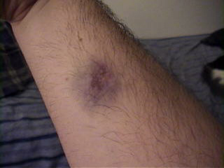 Spider Bite Bruise http://19day.com/notjournal/index.php?s=ire&paged=8